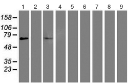 Western blot - Anti-PPAR alpha antibody [OTI1E8] (ab119416)
