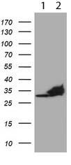 Western blot - Anti-PSMA4 antibody [OTI1H10] (ab119419)