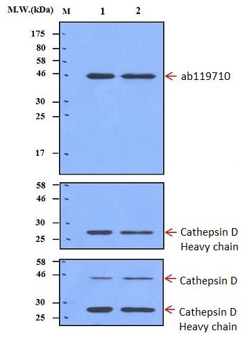 Western blot - Anti-proCathepsin D antibody [AF4G5] (ab119710)