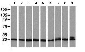 Western blot - Anti-PNMT antibody [OTI1D2] (ab119784)