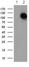 Western blot - Anti-Aminopeptidase A antibody [OTI1C4] (ab119798)
