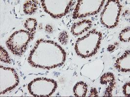 Immunohistochemistry (Formalin/PFA-fixed paraffin-embedded sections) - Anti-GOLPH2 antibody [OTI6C9] (ab119800)