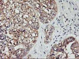 Immunohistochemistry (Formalin/PFA-fixed paraffin-embedded sections) - Anti-PDSS2 antibody [OTI4F9] (ab119804)