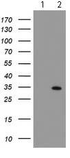 Western blot - Anti-SOCS3 antibody [OTI5C2] (ab119806)