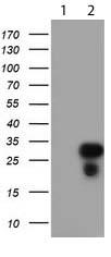 Western blot - Anti-RGS16 antibody [OTI4C9] (ab119925)