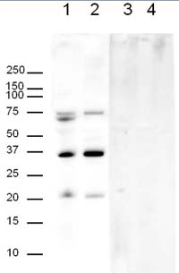 Western blot - Anti-APH1a antibody (ab12104)