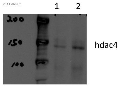 Western blot - Anti-HDAC4 antibody (ab12172)