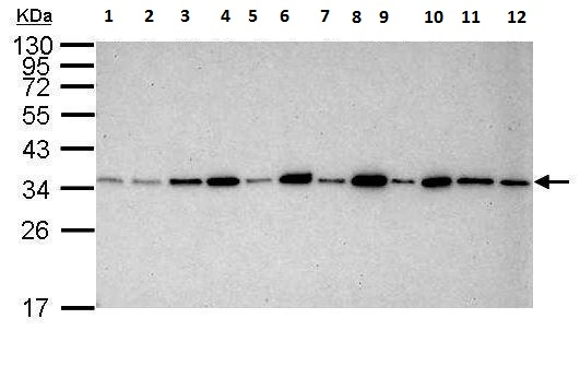 Western blot - Anti-PCNA antibody [339] (ab12449)