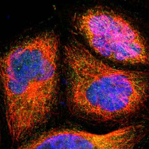 Immunocytochemistry/ Immunofluorescence - Anti-C22orf29 antibody (ab121113)