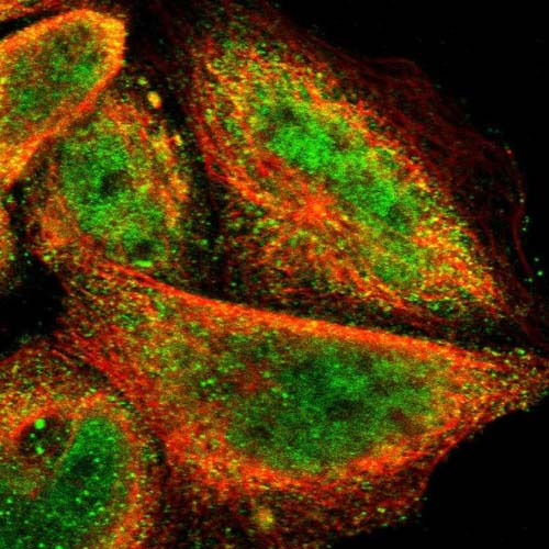Immunocytochemistry/ Immunofluorescence - Anti-FRMD7 antibody (ab121119)