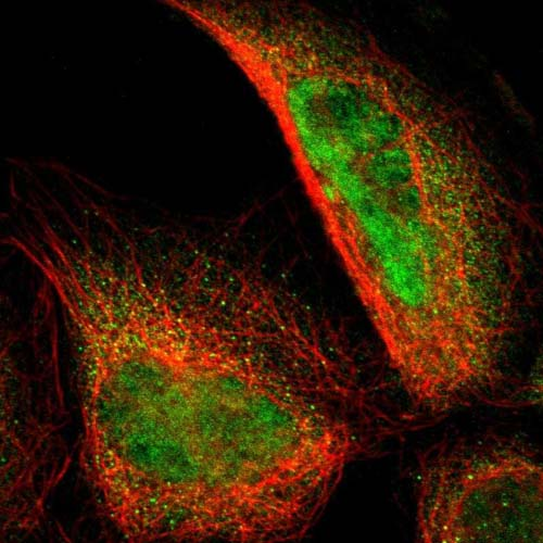 Immunocytochemistry/ Immunofluorescence - Anti-RRP7A antibody (ab121142)