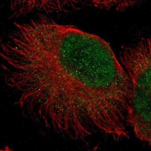 Immunocytochemistry/ Immunofluorescence - Anti-ZNF777 antibody (ab121183)