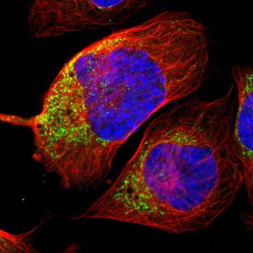 Immunocytochemistry/ Immunofluorescence - Anti-CHADL antibody (ab121228)