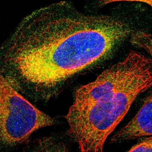 Immunocytochemistry/ Immunofluorescence - Anti-TCP11L1 antibody (ab121231)