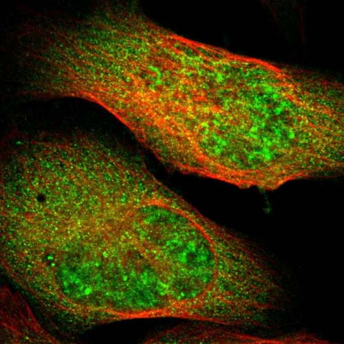Immunocytochemistry/ Immunofluorescence - Anti-PLAGL2 antibody (ab121239)