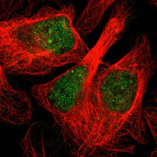 Immunocytochemistry/ Immunofluorescence - Anti-DOS antibody (ab121378)