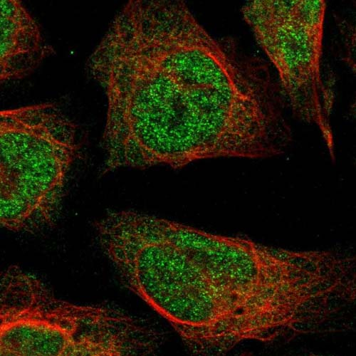 Immunocytochemistry/ Immunofluorescence - Anti-WSCD2 antibody (ab121392)