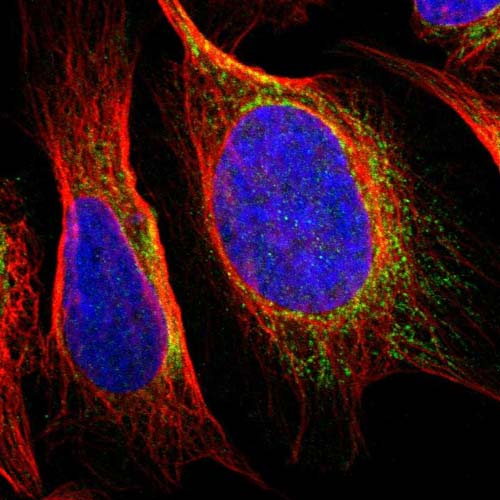 Immunocytochemistry/ Immunofluorescence - Anti-SNX19 antibody (ab121401)