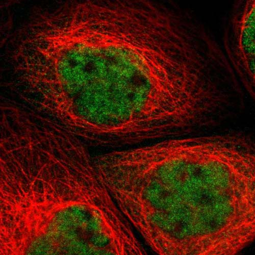 Immunocytochemistry/ Immunofluorescence - Anti-GRRP1 antibody (ab121405)