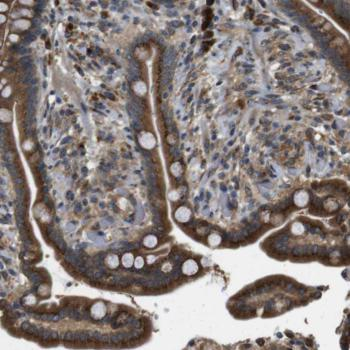 Immunohistochemistry (Formalin/PFA-fixed paraffin-embedded sections) - Anti-TMEM143 antibody (ab121431)
