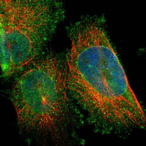 Immunocytochemistry/ Immunofluorescence - Anti-ARL6IP6 antibody (ab121448)