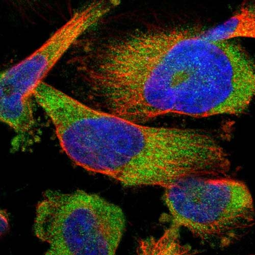 Immunocytochemistry/ Immunofluorescence - Anti-FAM69A antibody (ab121483)