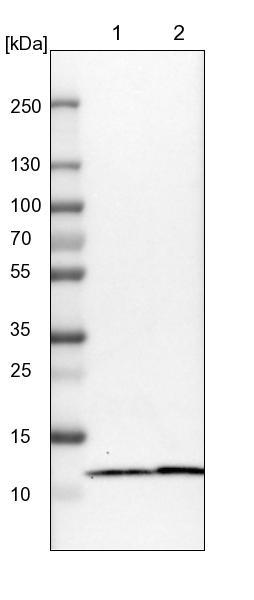 Western blot - Anti-C7orf59 antibody (ab121645)