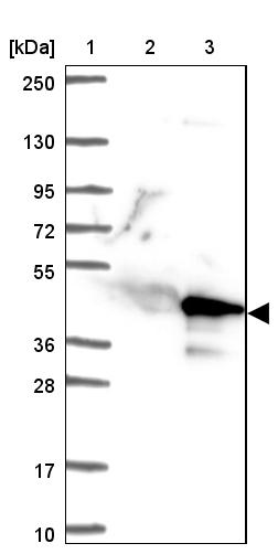 Western blot - Anti-C9orf171 antibody (ab121666)
