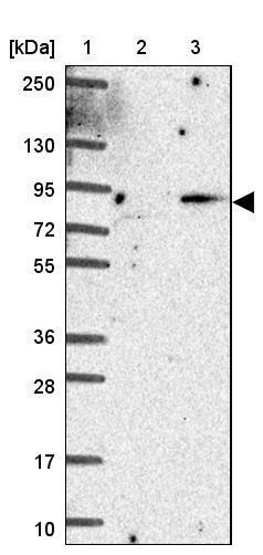 Western blot - Anti-MAMDC2 antibody (ab121697)