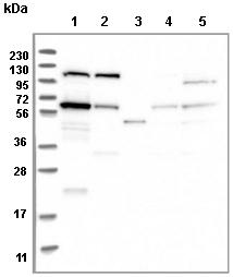 Western blot - Anti-TOM1L2 antibody (ab121716)