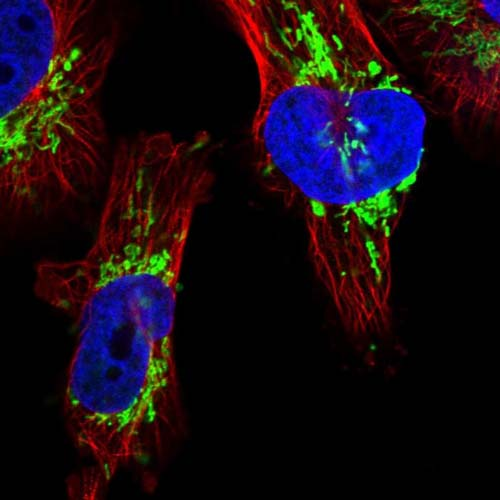 Immunocytochemistry/ Immunofluorescence - Anti-DSCR3 antibody (ab121747)