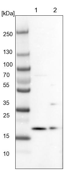 Western blot - Anti-ARMC7 antibody (ab121800)