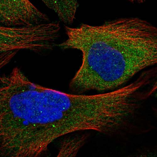 Immunocytochemistry/ Immunofluorescence - Anti-TRAF6BP antibody (ab121812)