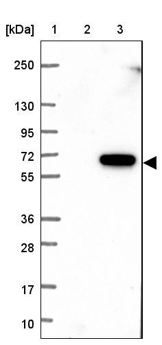 Western blot - Anti-TMEM102 antibody (ab121813)