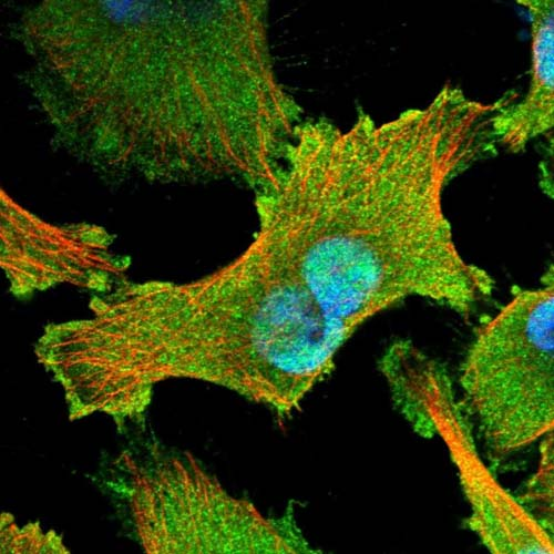 Immunocytochemistry/ Immunofluorescence - Anti-NKF3 kinase family member antibody (ab121869)