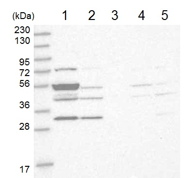 Western blot - Anti-TMPPE antibody (ab121904)