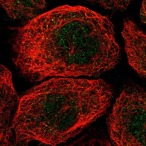Immunocytochemistry/ Immunofluorescence - Anti-KIAA0146 antibody (ab121925)