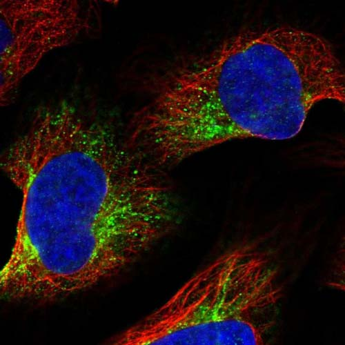 Immunocytochemistry/ Immunofluorescence - Anti-ZYG11B antibody (ab121975)