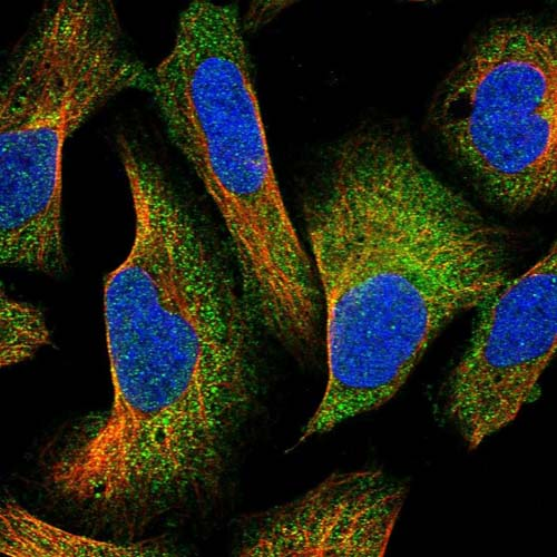 Immunocytochemistry/ Immunofluorescence - Anti- C1orf158 antibody (ab121983)