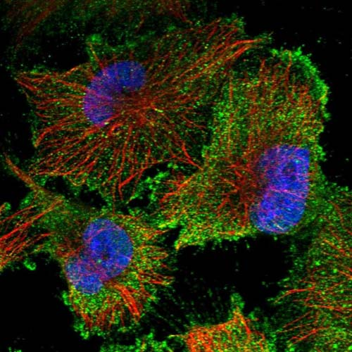 Immunocytochemistry/ Immunofluorescence - Anti-TCTEX1D1 antibody (ab121986)
