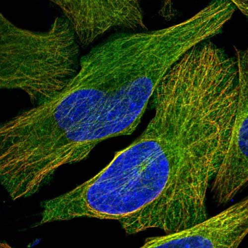 Immunocytochemistry/ Immunofluorescence - Anti-KIF26B antibody (ab122001)