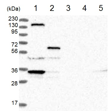 Western blot - Anti-LRRC67 antibody (ab122006)