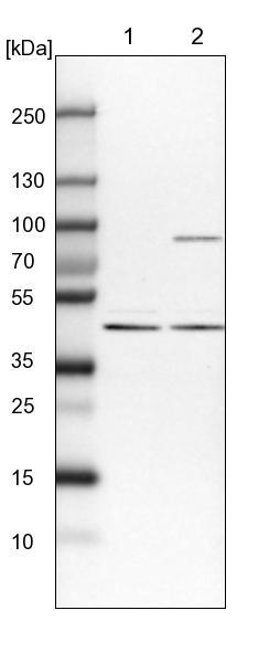 Western blot - Anti-ANKRD34A antibody (ab122073)