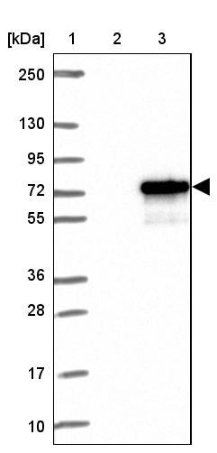 Western blot - Anti-TTC24 antibody (ab122086)