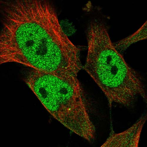 Immunocytochemistry/ Immunofluorescence - Anti-TYSND1 antibody (ab122106)