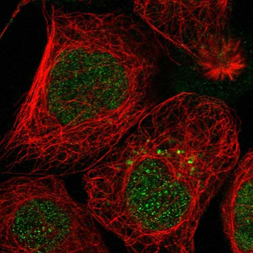 Immunocytochemistry/ Immunofluorescence - Anti-SH3YL1 antibody (ab122142)