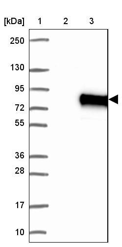 Western blot - Anti-N4BP3 antibody (ab122146)