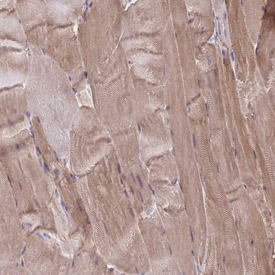 Immunohistochemistry (Formalin/PFA-fixed paraffin-embedded sections) - Anti-C1orf170 antibody (ab122187)