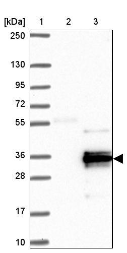 Western blot - Anti-C1orf229 antibody (ab122230)