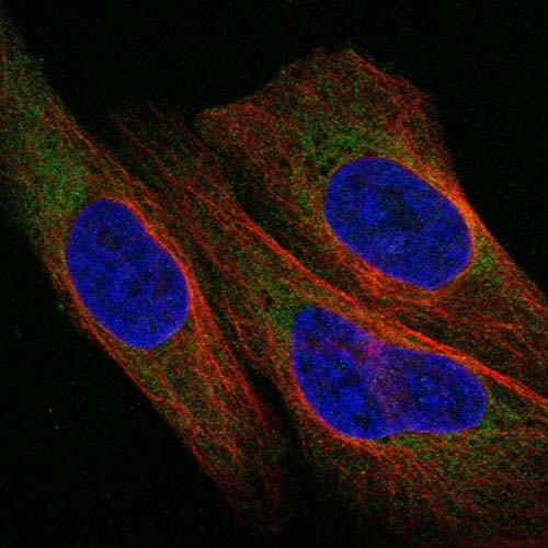 Immunocytochemistry/ Immunofluorescence - Anti-C1orf228 antibody (ab122232)